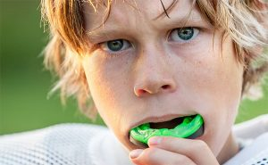 Sports Mouth Guards for Children